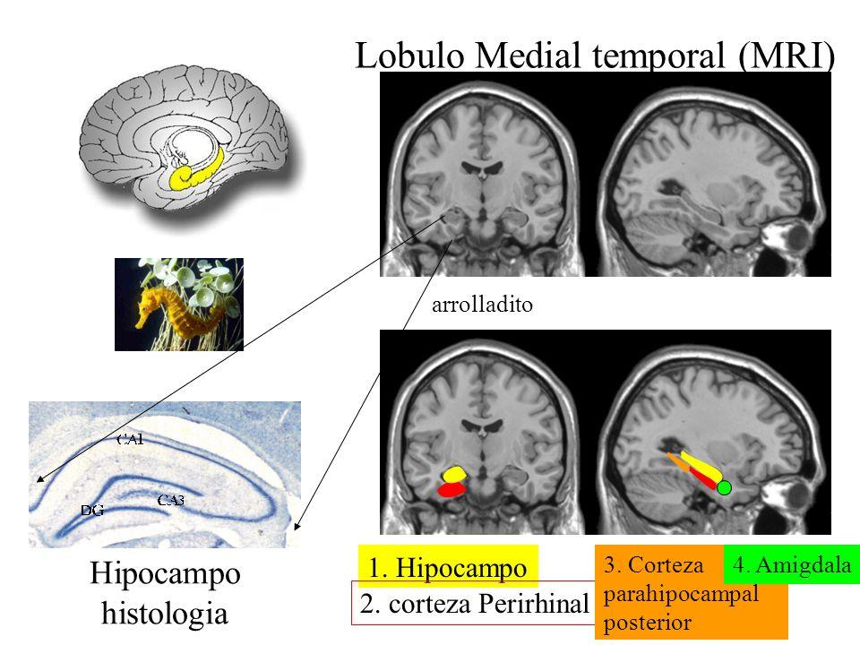 Lobulo Medial temporal (MRI) arrolladito Hipocampo histologia 1. Hipocampo 2. corteza Perirhinal 3. Corteza parahipocampal posterior 4. Amigdala