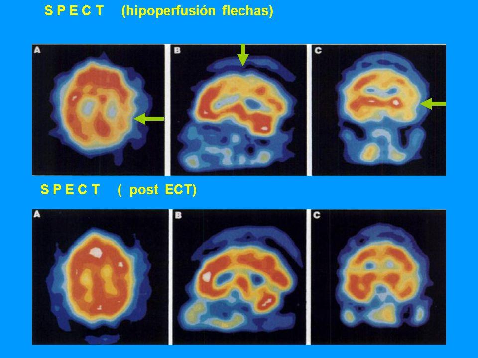 S P E C T (hipoperfusión flechas) S P E C T ( post ECT)