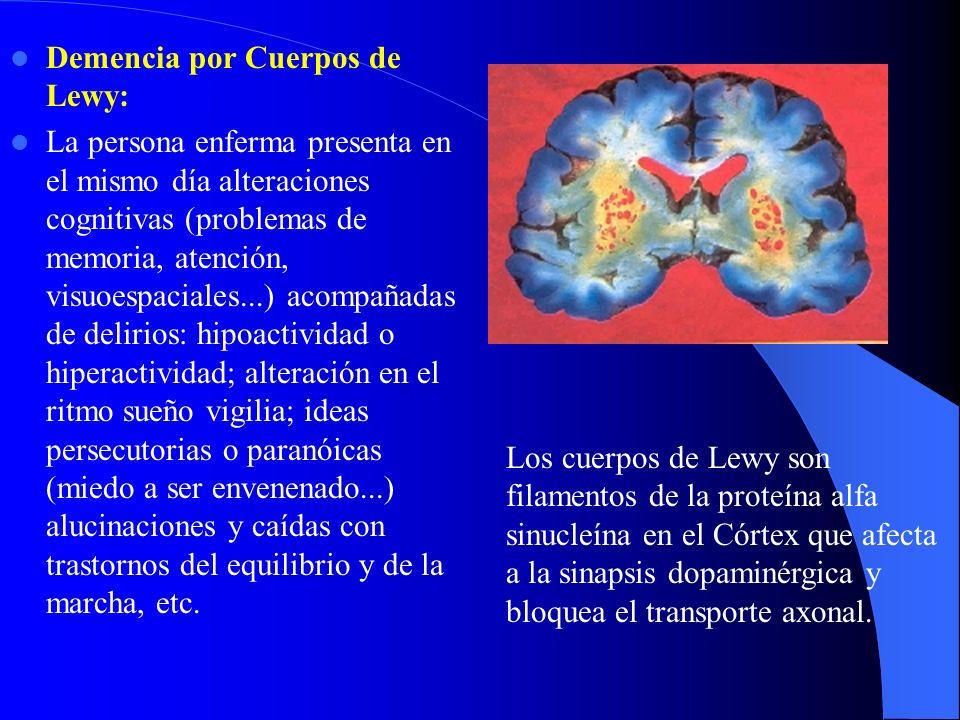 Demencia por Cuerpos de Lewy: La persona enferma presenta en el mismo día alteraciones cognitivas (problemas de memoria, atención, visuoespaciales...)
