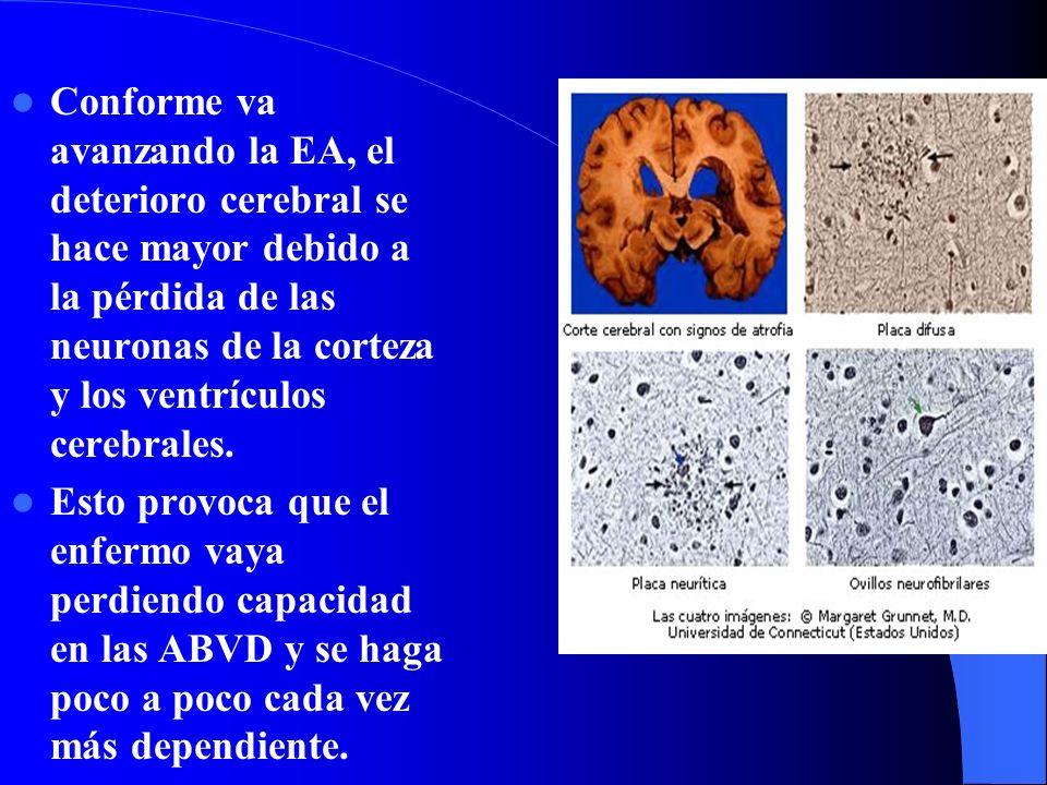 Conforme va avanzando la EA, el deterioro cerebral se hace mayor debido a la pérdida de las neuronas de la corteza y los ventrículos cerebrales.