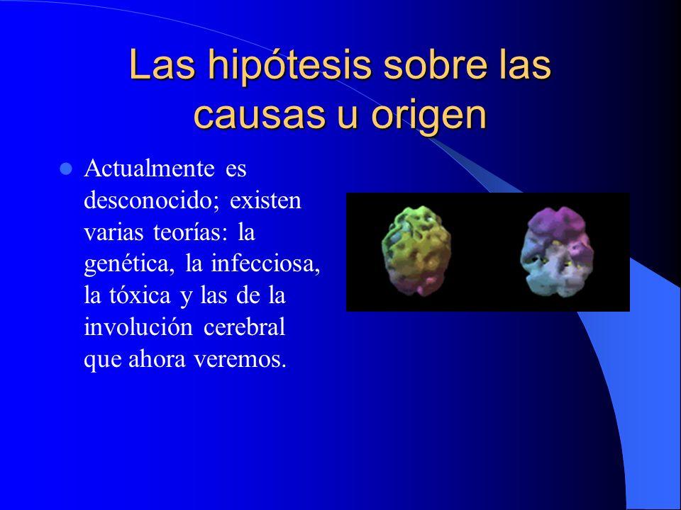 Las hipótesis sobre las causas u origen Actualmente es desconocido; existen varias teorías: la genética, la infecciosa, la tóxica y las de la involución cerebral que ahora veremos.