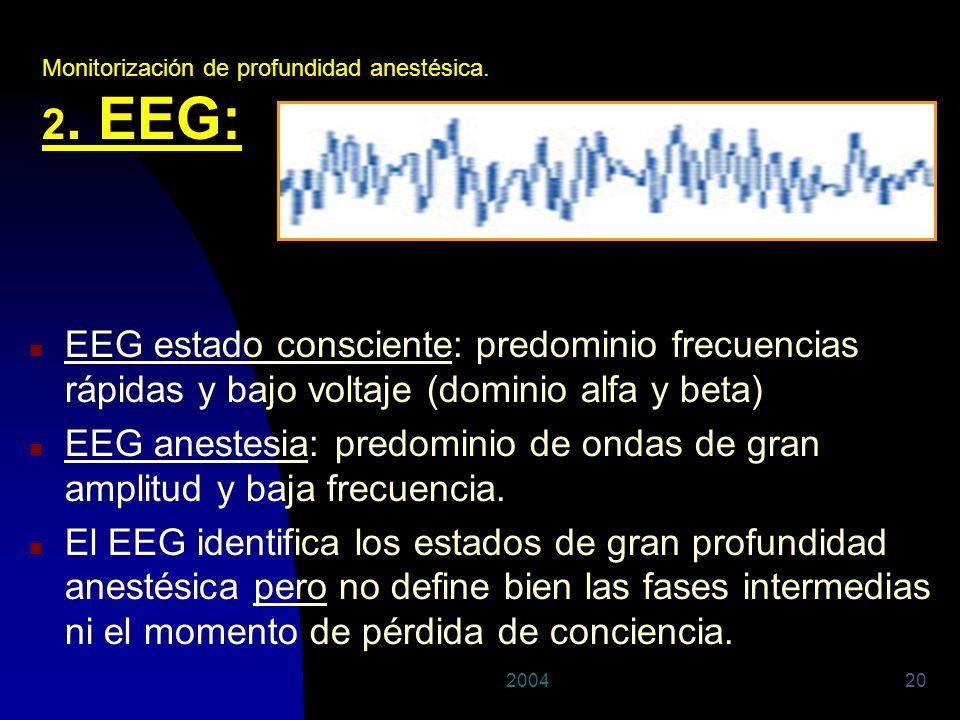 200420 n EEG estado consciente: predominio frecuencias rápidas y bajo voltaje (dominio alfa y beta) n EEG anestesia: predominio de ondas de gran ampli