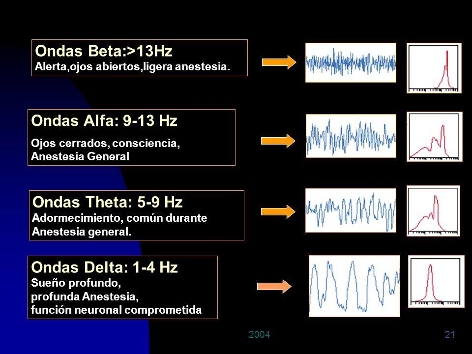 200421 Ondas Alfa: 9-13 Hz Ojos cerrados, consciencia, Anestesia General Ondas Beta:>13Hz Alerta,ojos abiertos,ligera anestesia. Ondas Theta: 5-9 Hz A
