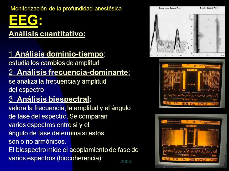 200422 EEG: Análisis cuantitativo: 1.Análisis dominio-tiempo: estudia los cambios de amplitud 2. Análisis frecuencia-dominante: se analiza la frecuenc