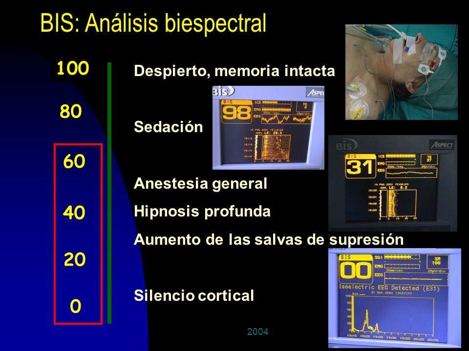 200425 BIS: Análisis biespectral 100 0 40 80 60 20 Despierto, memoria intacta Sedación Anestesia general Hipnosis profunda Aumento de las salvas de su