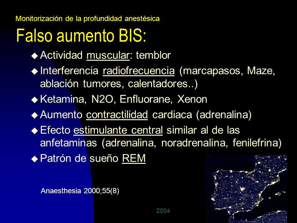 200427 Falso aumento BIS: u Actividad muscular: temblor u Interferencia radiofrecuencia (marcapasos, Maze, ablación tumores, calentadores..) u Ketamin