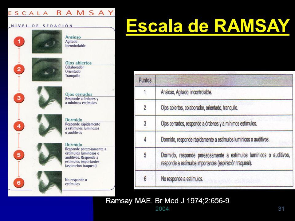 200431 Escala de RAMSAY Ramsay MAE. Br Med J 1974;2:656-9