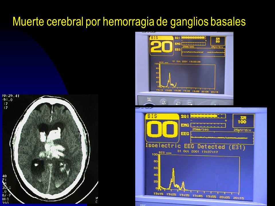 200436 Muerte cerebral por hemorragia de ganglios basales