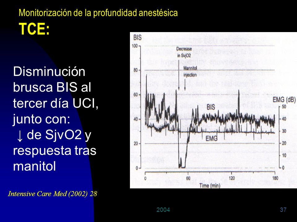 200437 Disminución brusca BIS al tercer día UCI, junto con: de SjvO2 y respuesta tras manitol Intensive Care Med (2002) 28 Monitorización de la profun