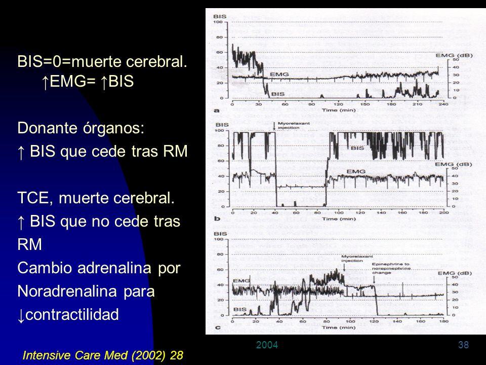 200438 BIS=0=muerte cerebral. EMG= BIS Donante órganos: BIS que cede tras RM TCE, muerte cerebral. BIS que no cede tras RM Cambio adrenalina por Norad