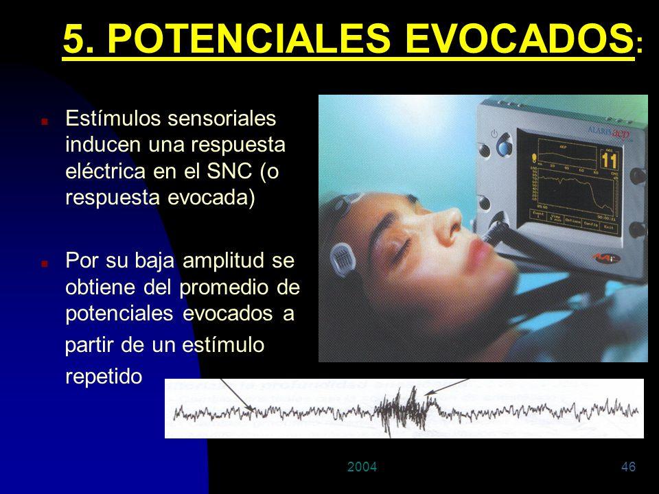200446 n Estímulos sensoriales inducen una respuesta eléctrica en el SNC (o respuesta evocada) n Por su baja amplitud se obtiene del promedio de poten