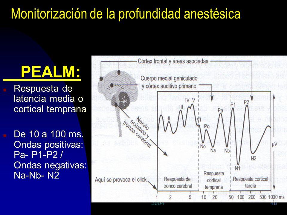 200448 Monitorización de la profundidad anestésica PEALM: n Respuesta de latencia media o cortical temprana n De 10 a 100 ms. Ondas positivas: Pa- P1-