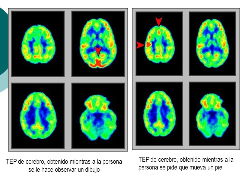 TEP de cerebro en reposoTEP de cerebro, obtenido mientras a la persona se le hace escuchar música