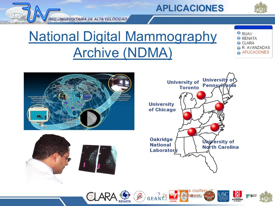 National Digital Mammography Archive (NDMA) 1 Images courtesy of: Dr. Robert Hollebeek, NCSA University of Toronto University of Pennsylvania Universi