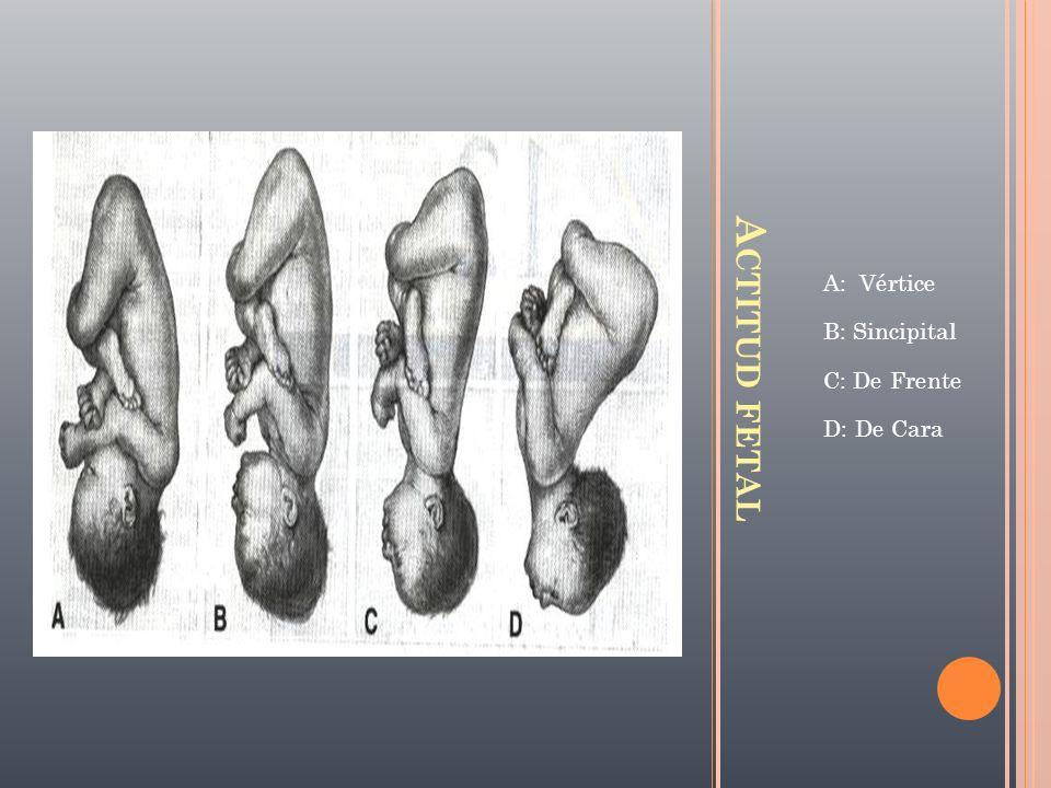 A CTITUD FETAL A: Vértice B: Sincipital C: De Frente D: De Cara