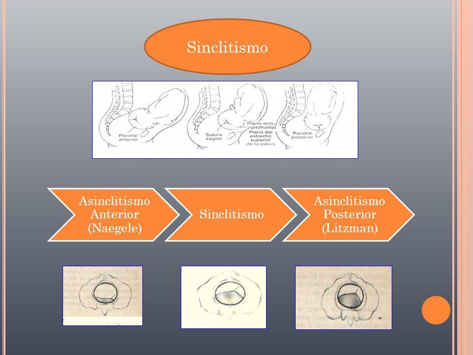 Sinclitismo Asinclitismo Anterior (Naegele) Sinclitismo Asinclitismo Posterior (Litzman)