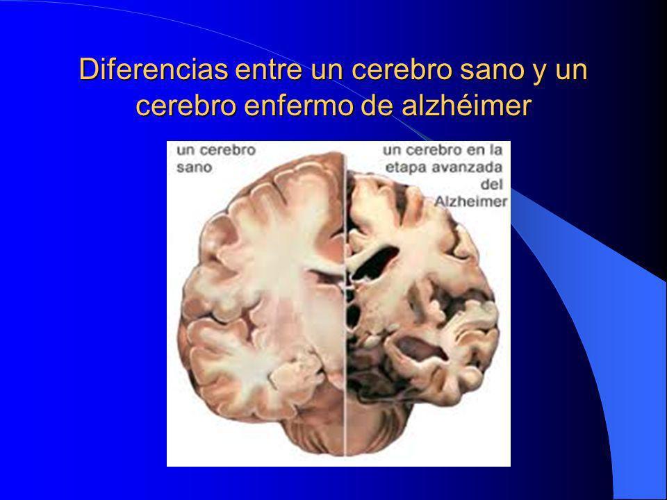 Diferencias entre un cerebro sano y un cerebro enfermo de alzhéimer