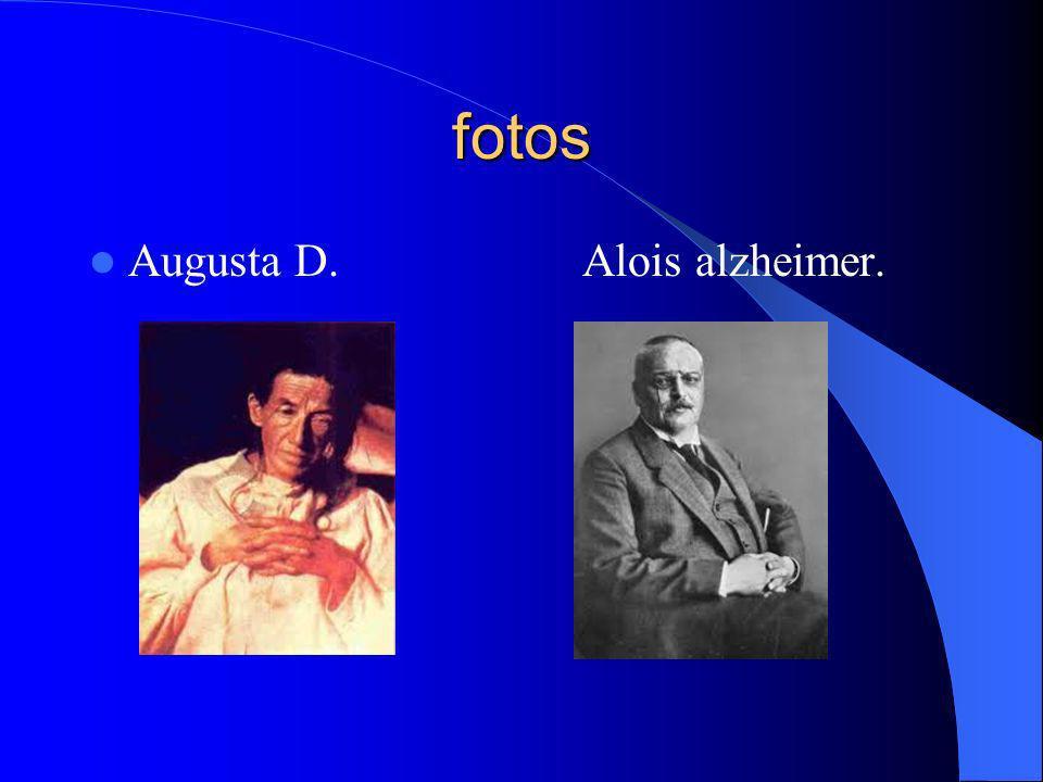 Hipótesis Una de las primeras hip ó tesis sugiere que la enfermedad del Alzheimer, se debe a problemas de conexi ó n entre neuronas por la falta de neurotransmisores de acetilcolina, que estas son sustancias qu í micas que est á n entre las neuronas y que permiten transmitir el mensaje de unas a otras.