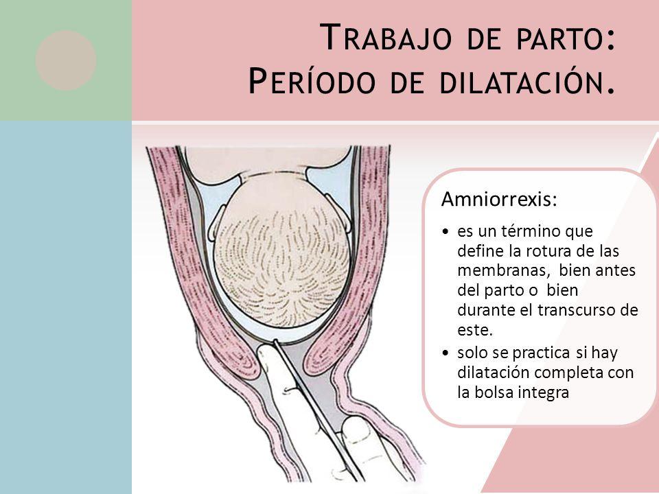 T RABAJO DE PARTO : P ERÍODO DE DILATACIÓN. Amniorrexis: es un término que define la rotura de las membranas, bien antes del parto o bien durante el t