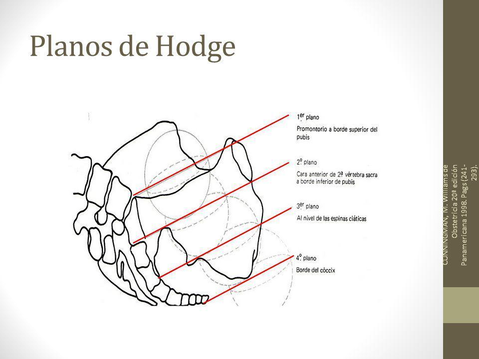 Planos de Hodge CUNNINGMAN, M. Williams de Obstetricia 20ª edición Panamericana 1998. Pags (241- 293).