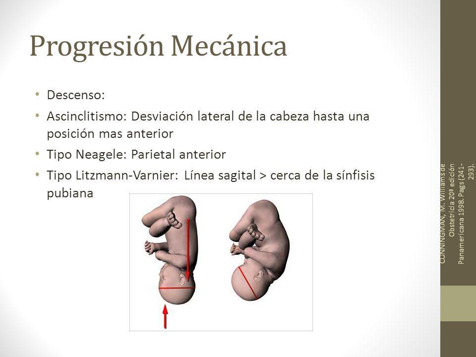 Progresión Mecánica Descenso: Ascinclitismo: Desviación lateral de la cabeza hasta una posición mas anterior Tipo Neagele: Parietal anterior Tipo Litz