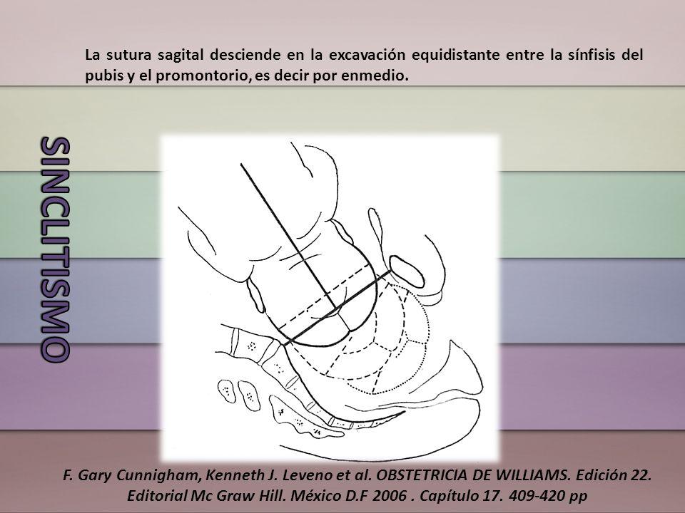 La sutura sagital desciende en la excavación equidistante entre la sínfisis del pubis y el promontorio, es decir por enmedio. F. Gary Cunnigham, Kenne