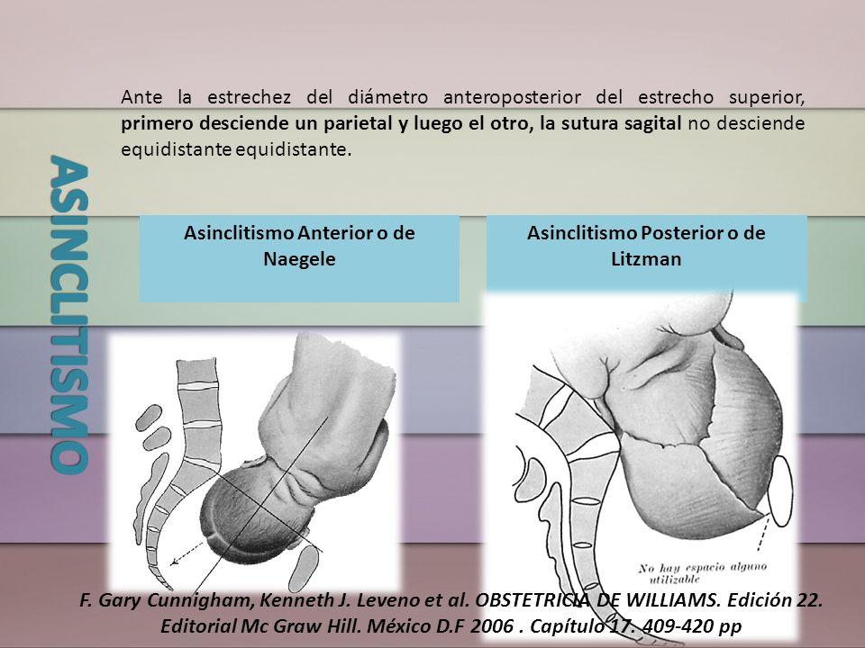 Ante la estrechez del diámetro anteroposterior del estrecho superior, primero desciende un parietal y luego el otro, la sutura sagital no desciende eq