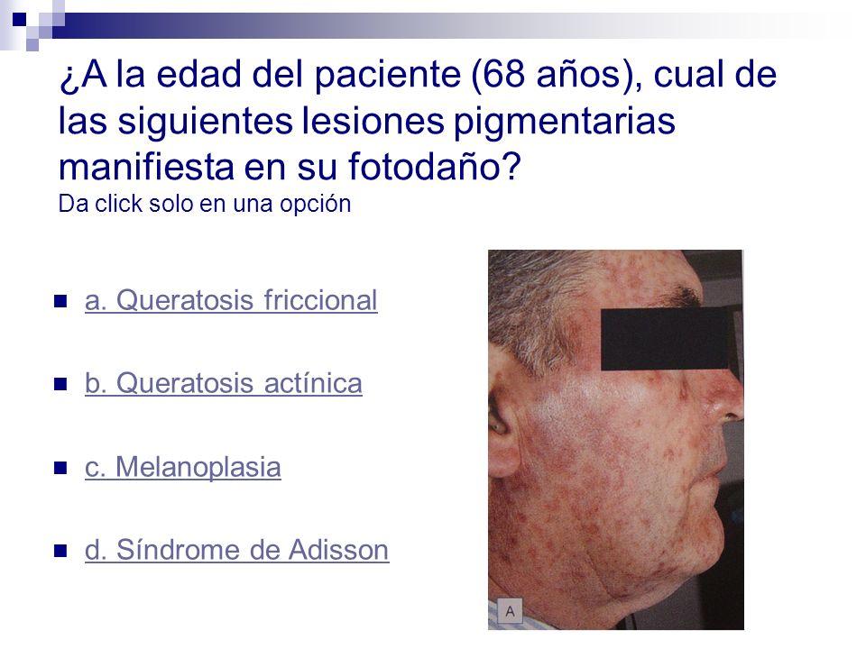 ¿A la edad del paciente (68 años), cual de las siguientes lesiones pigmentarias manifiesta en su fotodaño? Da click solo en una opción a. Queratosis f