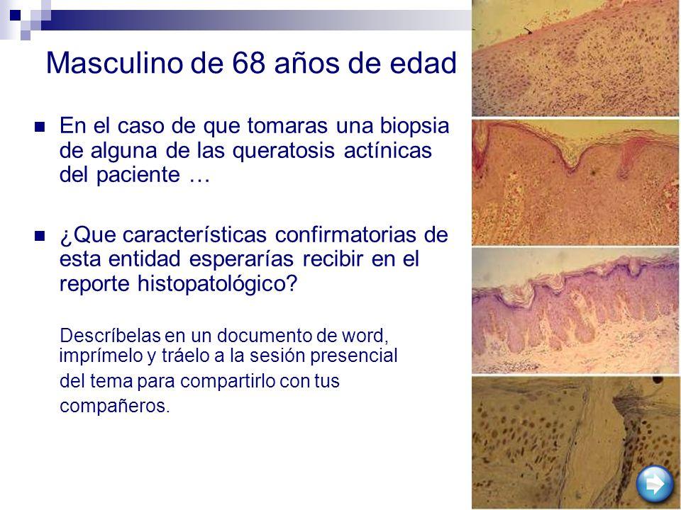 En el caso de que tomaras una biopsia de alguna de las queratosis actínicas del paciente … ¿Que características confirmatorias de esta entidad esperar
