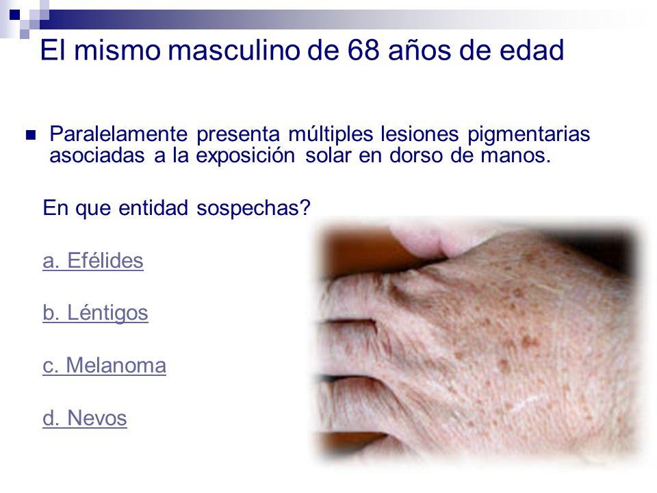 El mismo masculino de 68 años de edad Paralelamente presenta múltiples lesiones pigmentarias asociadas a la exposición solar en dorso de manos. En que