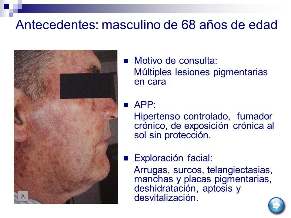 Motivo de consulta: Múltiples lesiones pigmentarias en cara APP: Hipertenso controlado, fumador crónico, de exposición crónica al sol sin protección.