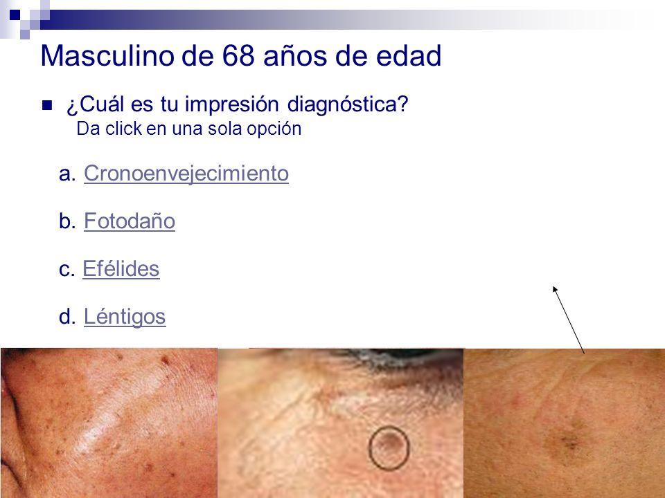 Masculino de 68 años de edad ¿Cuál es tu impresión diagnóstica? Da click en una sola opción a. CronoenvejecimientoCronoenvejecimiento b. FotodañoFotod