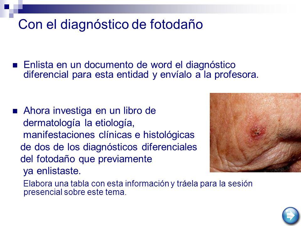 Con el diagnóstico de fotodaño Enlista en un documento de word el diagnóstico diferencial para esta entidad y envíalo a la profesora. Ahora investiga