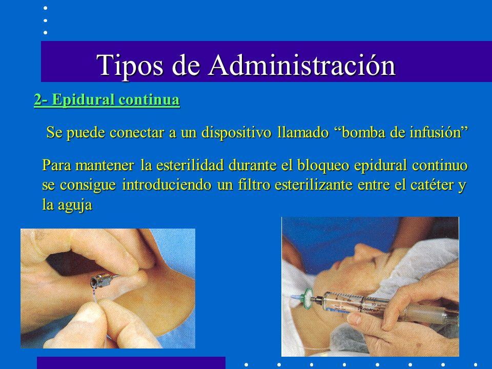 2- Epidural continua Se puede conectar a un dispositivo llamado bomba de infusión Para mantener la esterilidad durante el bloqueo epidural continuo se consigue introduciendo un filtro esterilizante entre el catéter y la aguja Tipos de Administración