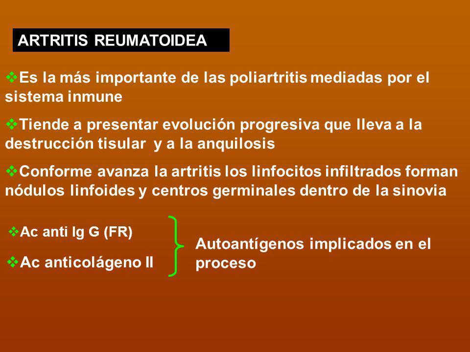 ARTRITIS REUMATOIDEA Es la más importante de las poliartritis mediadas por el sistema inmune Tiende a presentar evolución progresiva que lleva a la de