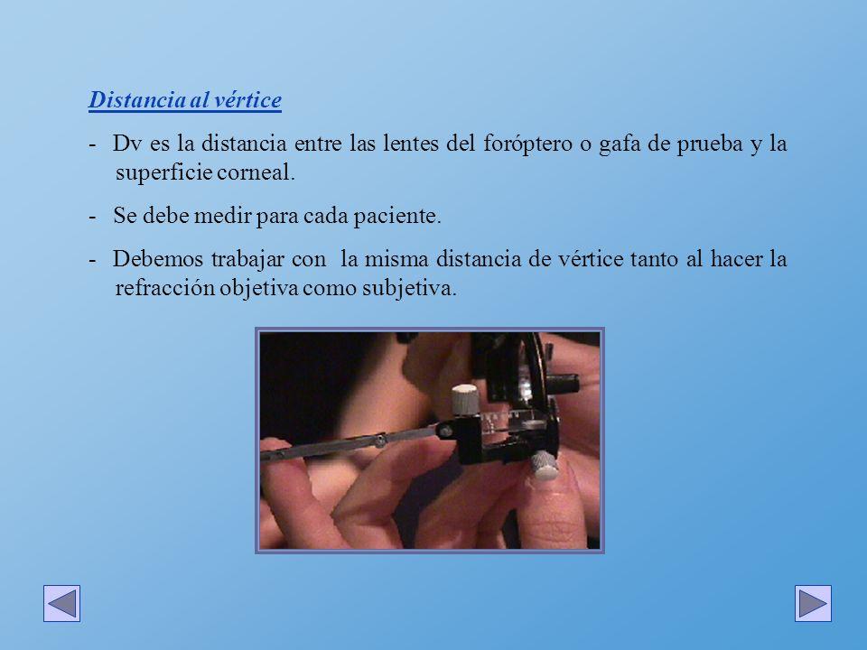 Distancia al vértice - Dv es la distancia entre las lentes del foróptero o gafa de prueba y la superficie corneal. - Se debe medir para cada paciente.