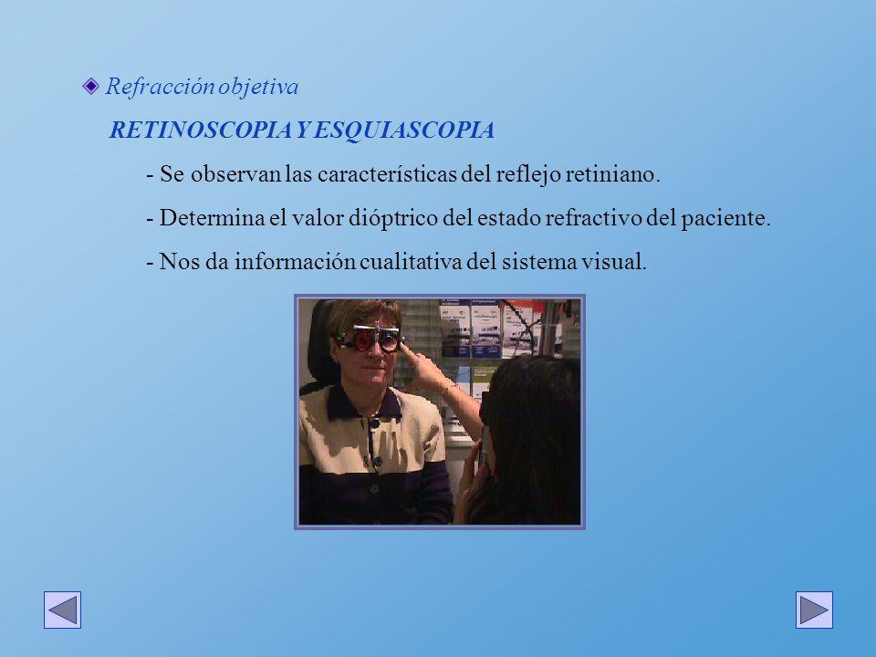 Refracción objetiva RETINOSCOPIA Y ESQUIASCOPIA - Se observan las características del reflejo retiniano. - Determina el valor dióptrico del estado ref