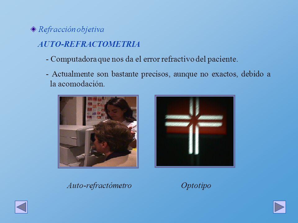 Refracción objetiva AUTO-REFRACTOMETRIA - Se debe controlar la acomodación.