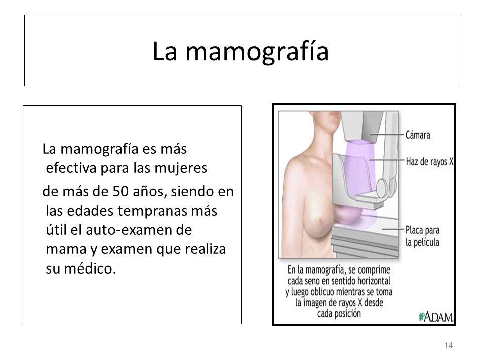 La mamografía La mamografía es más efectiva para las mujeres de más de 50 años, siendo en las edades tempranas más útil el auto-examen de mama y examen que realiza su médico.