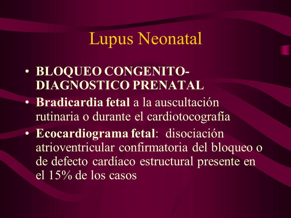 Lupus Neonatal BLOQUEO CONGENITO- DIAGNOSTICO PRENATAL Bradicardia fetal a la auscultación rutinaria o durante el cardiotocografía Ecocardiograma feta