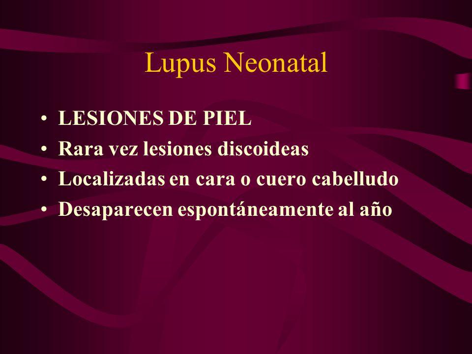 Lupus Neonatal LESIONES DE PIEL Rara vez lesiones discoideas Localizadas en cara o cuero cabelludo Desaparecen espontáneamente al año