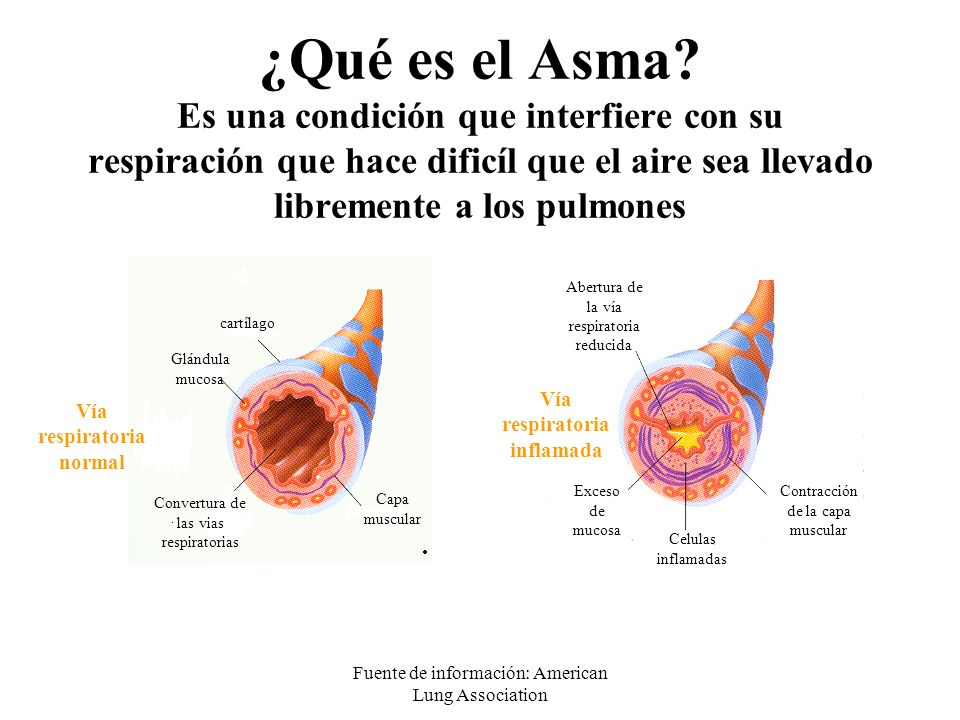 Fuente de información: American Lung Association ¿Qué es el Asma? Es una condición que interfiere con su respiración que hace dificíl que el aire sea