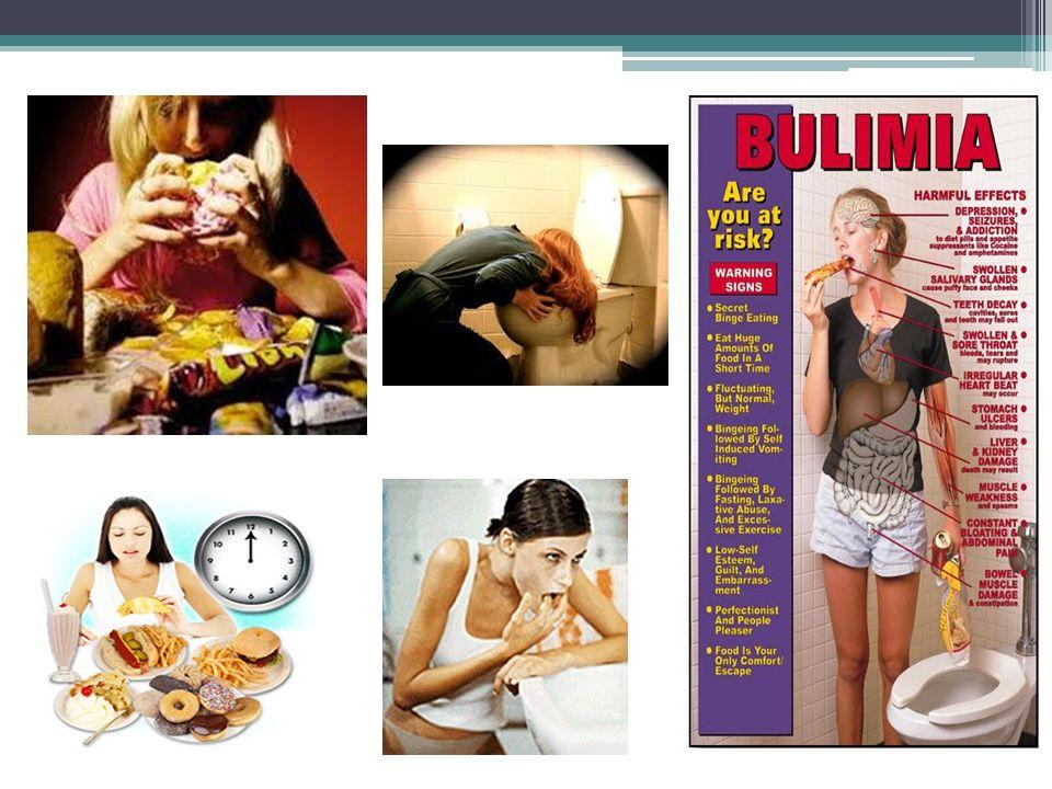 Ortorexia Es una nueva enfermedad relacionada con los trastornos de la alimentación.