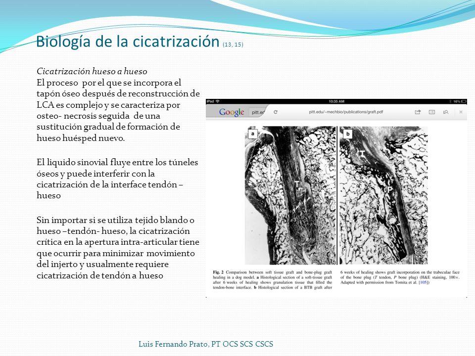 Biología de la cicatrización (13, 15) Cicatrización hueso a hueso El proceso por el que se incorpora el tapón óseo después de reconstrucción de LCA es complejo y se caracteriza por osteo- necrosis seguida de una sustitución gradual de formación de hueso huésped nuevo.