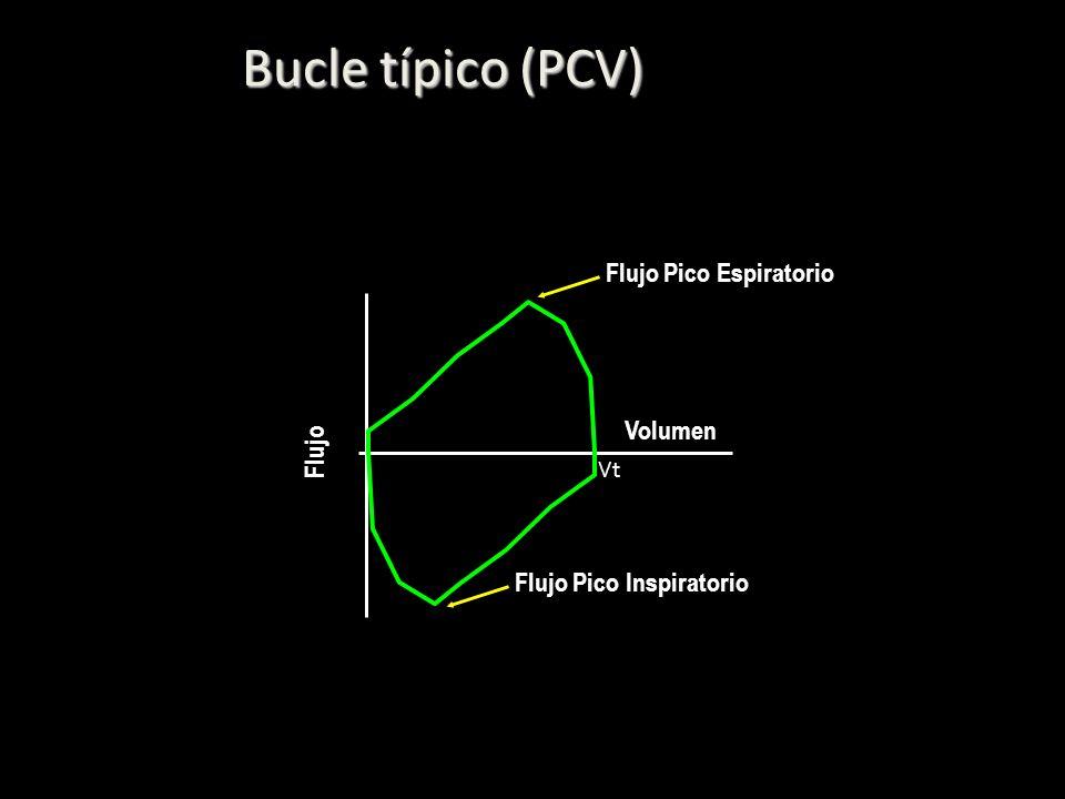 Bucle típico (PCV) Volumen Flujo Vt Flujo Pico Espiratorio Flujo Pico Inspiratorio