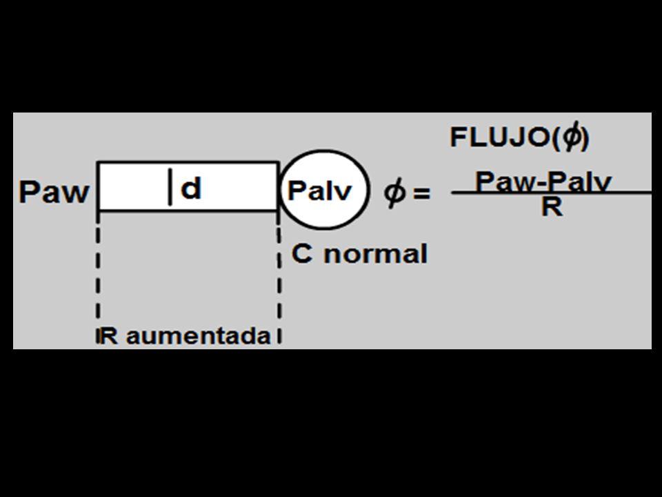 Bucle Flujo – Volumen. Evaluar fuga. Volumen Flujo Vt FPi Fuga Normal Vti - Vte