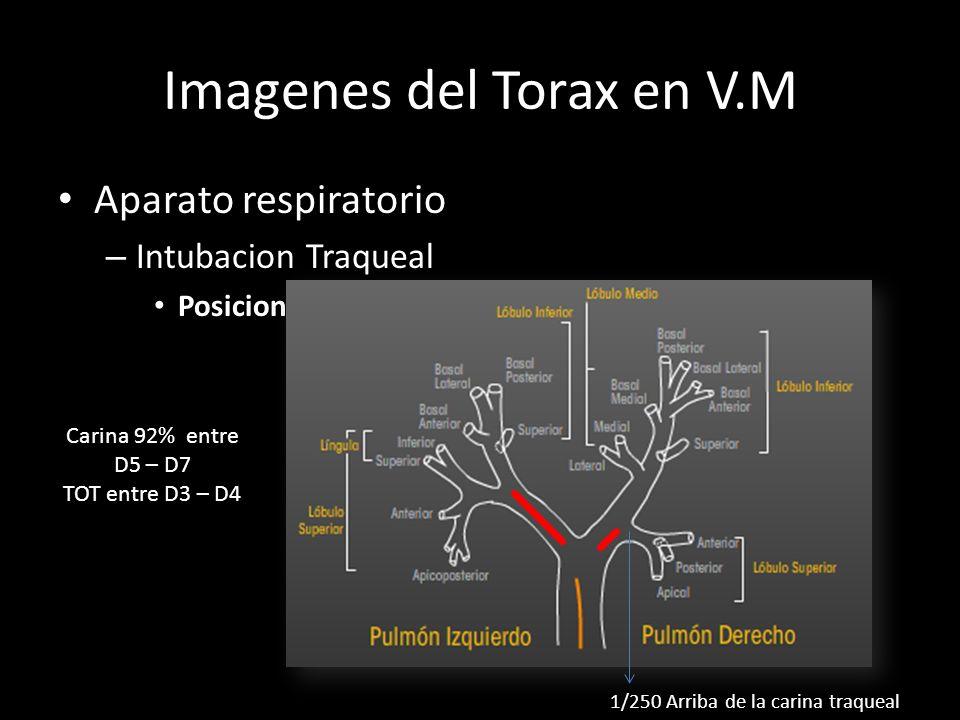 Imagenes del Torax en V.M Aparato respiratorio – Intubacion Traqueal Posicion ideal 5±2cm cefalico a la carina 1/250 Arriba de la carina traqueal Cari