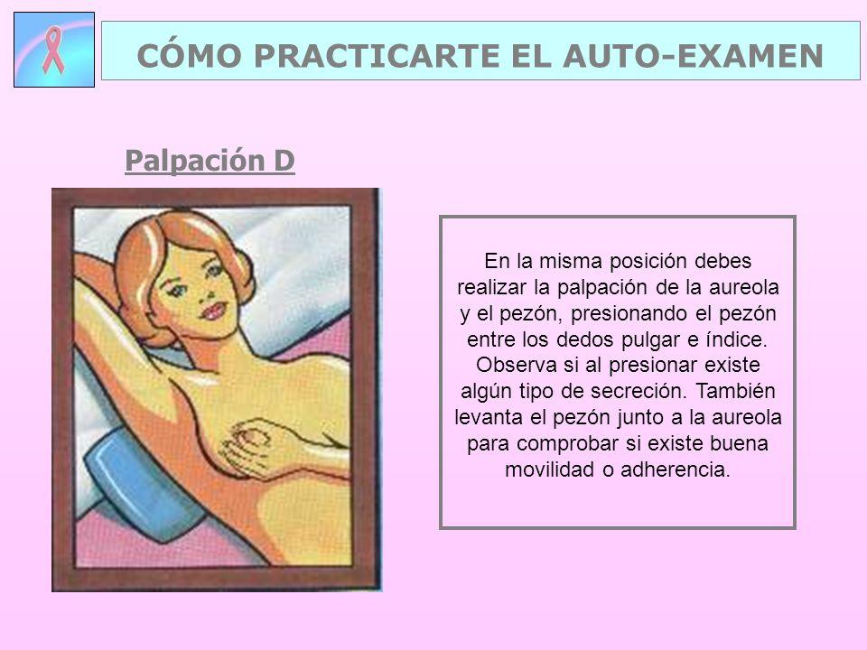Palpación D CÓMO PRACTICARTE EL AUTO-EXAMEN En la misma posición debes realizar la palpación de la aureola y el pezón, presionando el pezón entre los