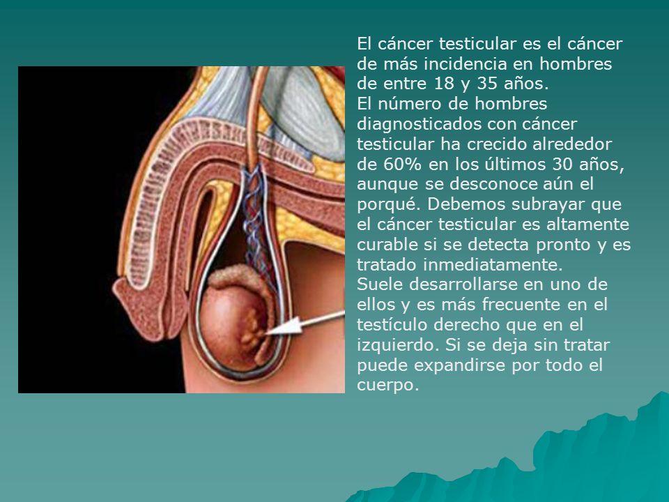 El cáncer testicular es el cáncer de más incidencia en hombres de entre 18 y 35 años. El número de hombres diagnosticados con cáncer testicular ha cre
