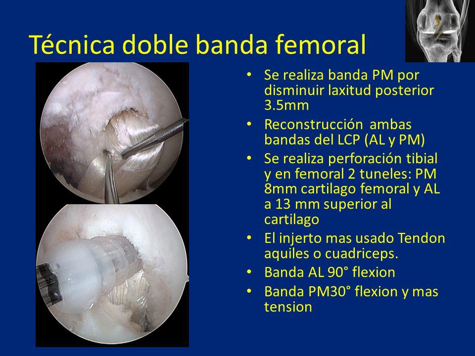 Técnica doble banda femoral Se realiza banda PM por disminuir laxitud posterior 3.5mm Reconstrucción ambas bandas del LCP (AL y PM) Se realiza perforación tibial y en femoral 2 tuneles: PM 8mm cartilago femoral y AL a 13 mm superior al cartilago El injerto mas usado Tendon aquiles o cuadriceps.